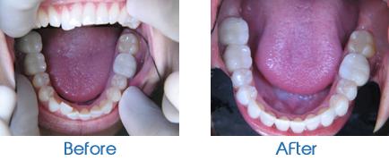 Invisalign- Lower Teeth