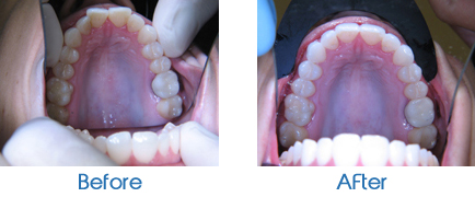 Invisalign- Upper Teeth
