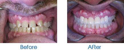 Invisalign Bridge work